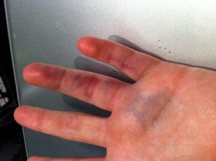 Лечение вывиха пальца руки в домашних условиях 481