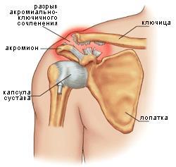 Как делаю операцию при полном разрыве акромиального ключичного сустава физические упражнения при дисплазии тазобедренного сустава у детей