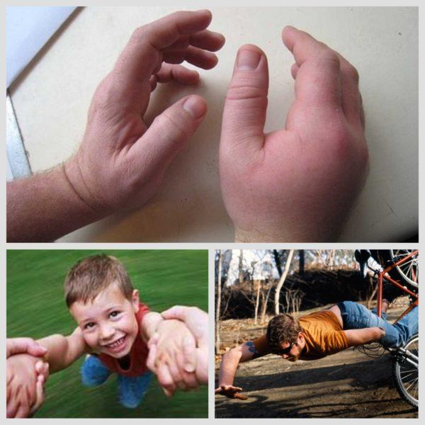 Растяжение связок ладони руки