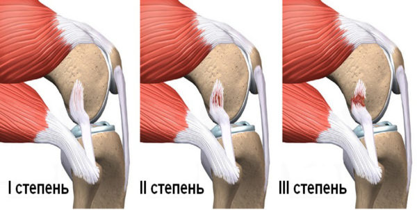 Растяжение мышц и связок бедра – симптомы и лечение, время ...