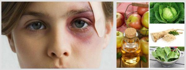 Как лечить ячмень на глазу в домашних условиях?