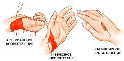 Наложить жгут при кровотечении из плеча