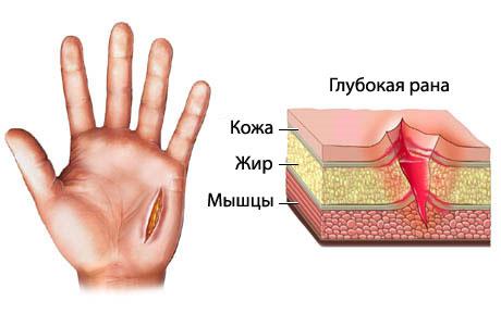 Порезала палец как быстрее вылечить