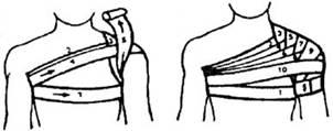 Изображение - Восходящая колосовидная повязка на плечевой сустав 1656-1