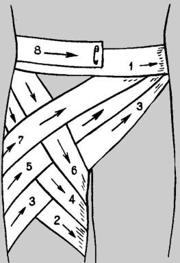 Изображение - Восходящая колосовидная повязка на плечевой сустав 1656-2