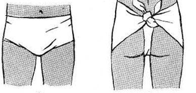 Плечевой сустав наложение косыночной повязки thumbnail