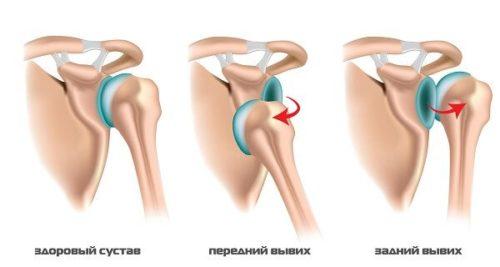 2 перелом и вывих локтивого сустава болит коленный сустав при ходьбе
