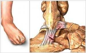 Изображение - Последствия вывиха голеностопного сустава 238-1-1