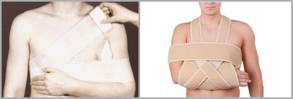 Повязка дезо при переломе плеча вывихе