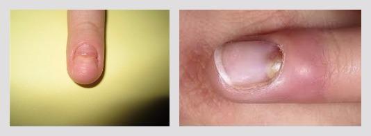 Какую мазь можно использовать при ушибе ногтя