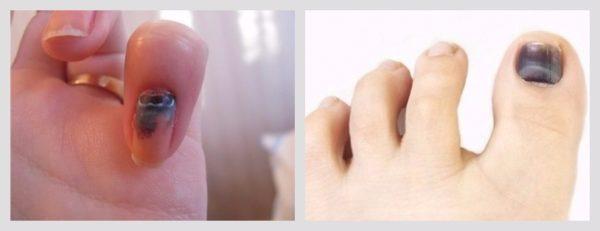 Ушиб пальца ноги синий ноготь