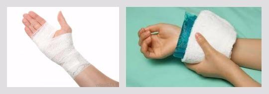 Вывихи суставов при переломе руки