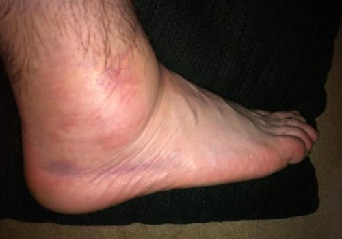 Если после ушиба нога болит thumbnail