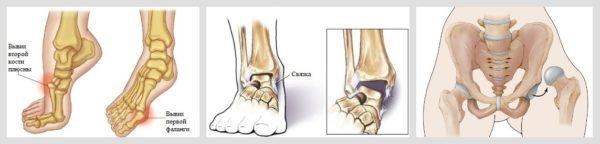 Изображение - Вывих сустава ноги 390-1-600x144