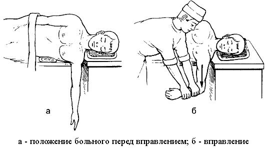 Вывих плечевого сустава человека