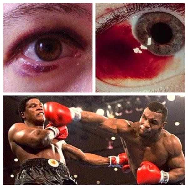 Ушиб возле глаза с повреждением кожи