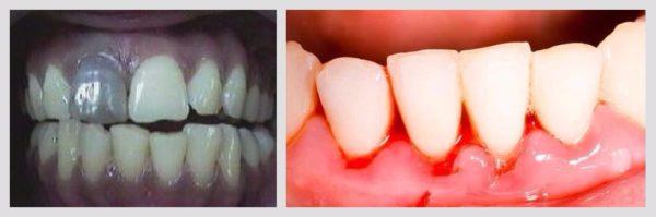 Ушиб зуба и десны: симптомы, причины и рекомендации по лечению у ...