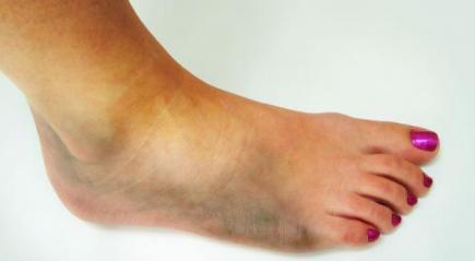 Болит нога ушиба нет