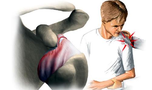 Ушиб плечевой сустав боль