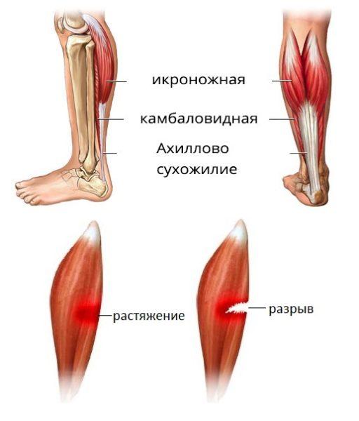 разрыв икроножной мышцы симптомы
