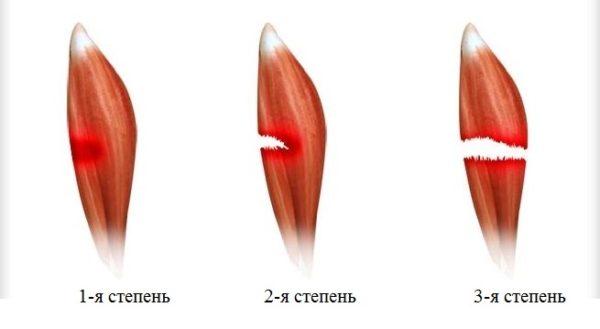 Степени повреждения мышцы