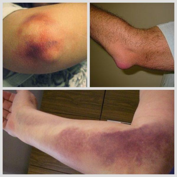 Ушиб локтевого сустава гонартроз коленного сустава история болезни