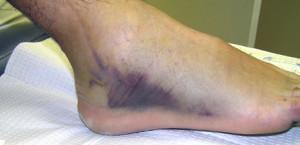 3-я степень растяжения связок ноги