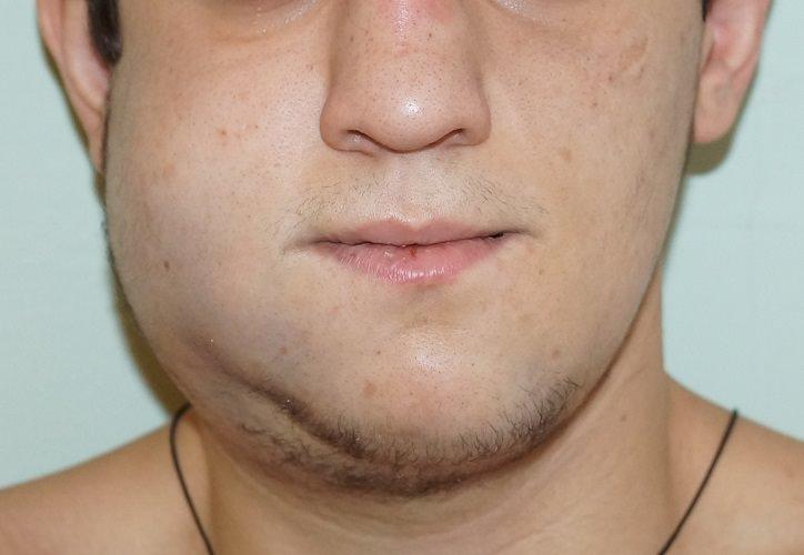 Перелом верхней и нижней челюсти – последствия, лечение и питание