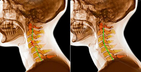 Причины симптомы классификация и лечение подвывиха шейного позвонка