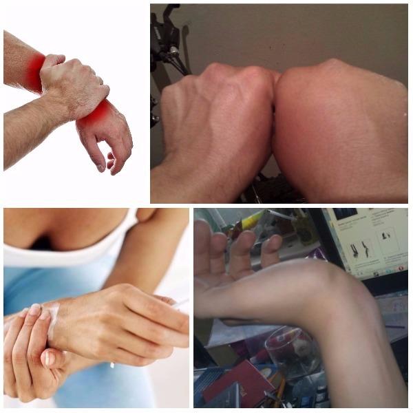 Уплотнение после ушиба на руке