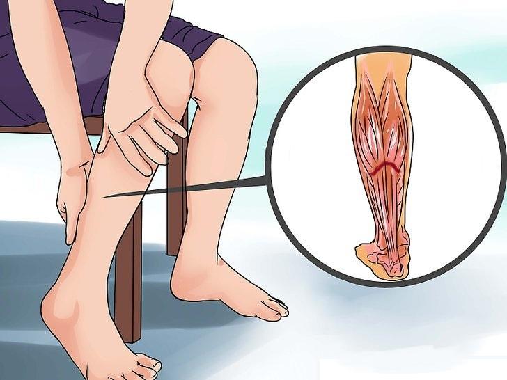 После бега болит камбаловидная мышца