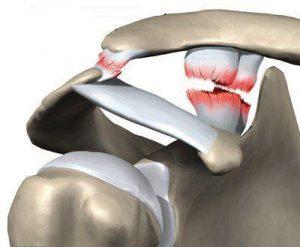 Акромиально ключичный сустав как устроен травмы и болезни