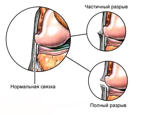 Изображение - Последствия вывиха голеностопного сустава ssss