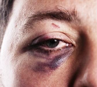 Как замаскировать синяк под глазом от удара
