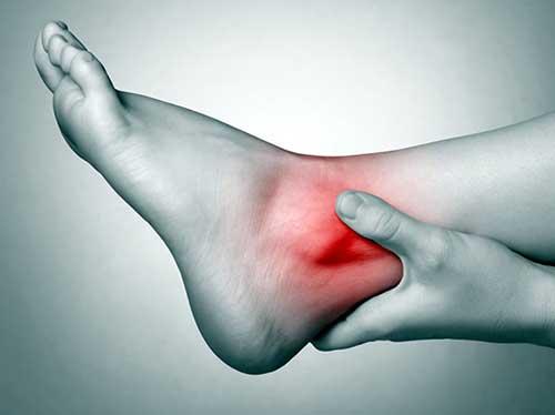 Лечение травм голеностопного сустава, ушиб голеностопа - симптомы и лечение