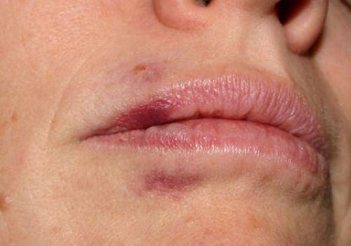От чего возникает гематома на губе и как ее лечить?