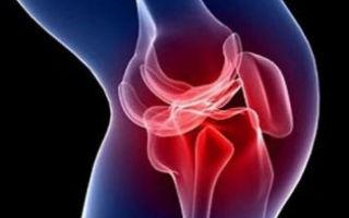 Как распознать и вылечить ушиб колена