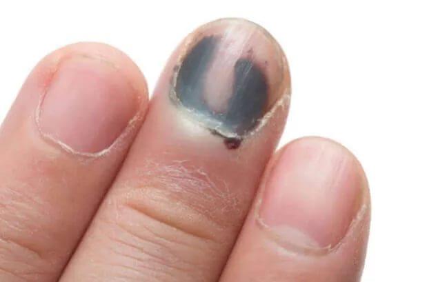 Как лечить отбитый палец на ноге
