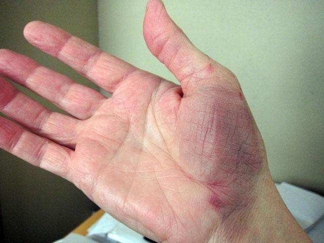 Ушиб кисти руки что делать Лечение симптомы упражнения