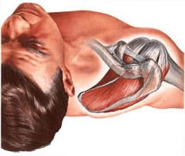 Первая помощь при вывихе плеча и лечение плечевого сустава после травмы реабилитация